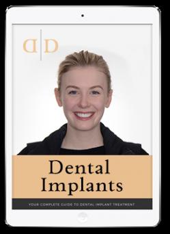 dental implants ebook