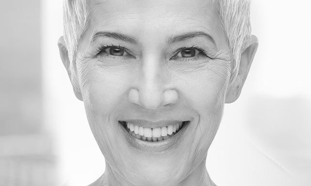 smiling women with dental implants