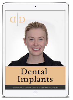 dental implants ebook