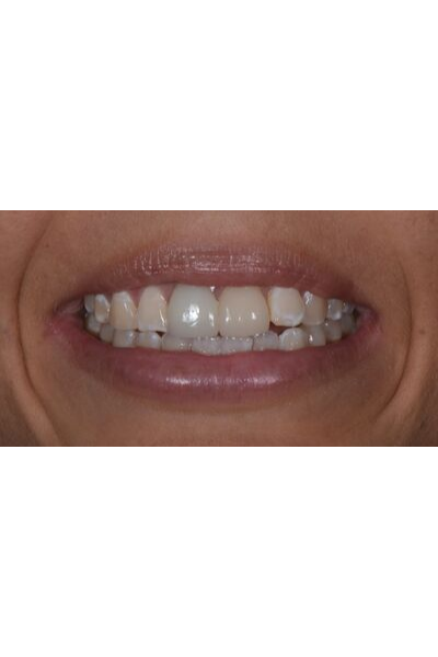 Before and after dental crowns image of an actual patient treated by Dr David Dunn at Macquarie Street Dental in Sydney