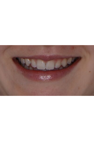 Before and after porcelain veneers image of an actual patient treated by Dr David Dunn at Macquarie Street Dental in Sydney
