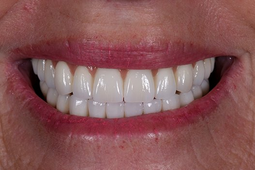 Close up of Michelle's stunning final tooth bridge
