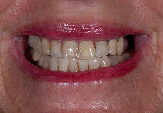 Michelle's teeth pre-treatment